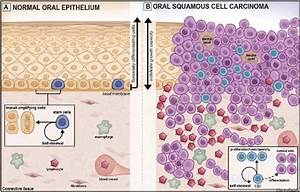 Schematic View Of Normal Oral Epithelium  A  And Oral