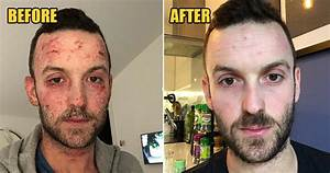 32yo Shares How He Cleared His Eczema With No Medication After Steroids Made It Worse