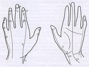 Су-джок терапия гипертония