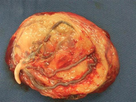 Placenta at Kirksville College of Osteopathic Medicine ...