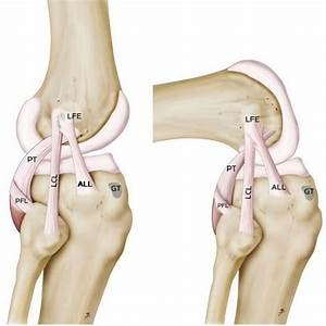 Anterolateral Ligament  A New Knee Ligament Discovered