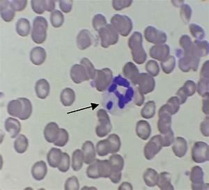 Ehrlichia Canis In Blood Smear