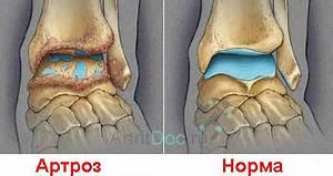 Артроз тазобедренного сустава 3 степени симптомы и лечение