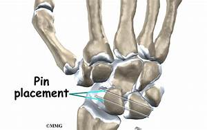 Percutaneous Pinning And Repair Of The Ligaments