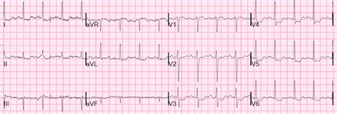 Dr Smith's Ecg Blog What Is The Treatment For This. Latin Phrase Signs. Bedroom Signs. Diner Signs. Tea Room Signs. Racing Pigeon Signs Of Stroke. Body Language Signs. Sun Poisoning Signs. Causes Dark Signs