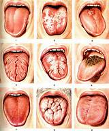 Лечение кандидоза полости рта при сахарном диабете