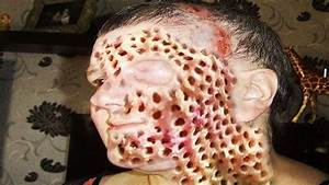 Trypophobia on Skin; Blackheads, Dilated Pores & White ...