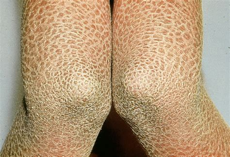 ichthyosis pictures symptoms   treatment