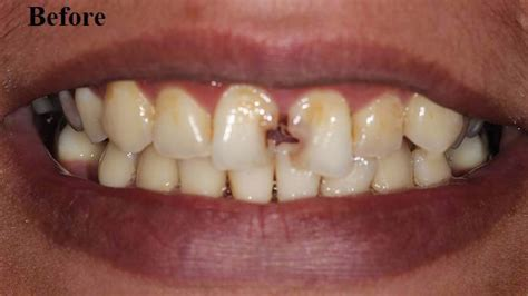 dr alemseged missonne dds blog replace missing front