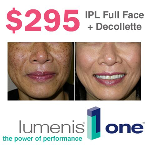 Ipl Lume One™ Photofacialdecollette January '18 Promo. Business Credit Application Template. Los Angeles Rooter Service Zane State College. Medicare Plans California Peapod Electric Car. Appliance Repair Brandon 2014 New Cars Models. Plane Manufacturing Companies. Companies Moving To Dallas Transfer Balance 0. Collect Credit Card Payments. Adobe Connect Alternative Ip Locator Map Free