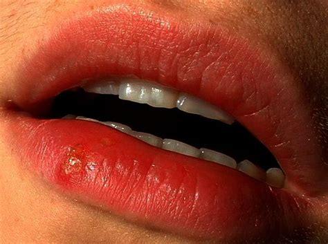 Cold Sore Corner Of Mouth