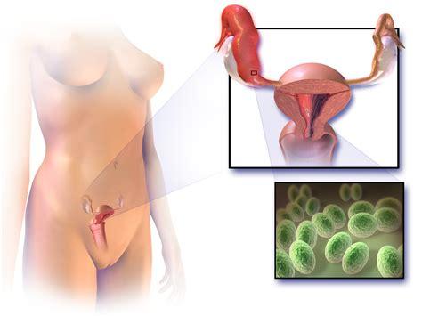 Pelvic Inflammatory Disease Pictures Symptoms Www