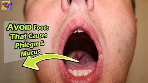 foods to avoid that causes phlegm and mucus coughing youtube