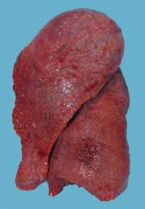 Lung Explant