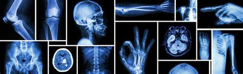 X-Ray - Carlsbad Imaging Center - Imperial Radiology