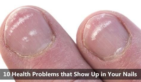 White Spots On Nail Beds by 10 Health Problems That Show Up In Your Nails Crunchy