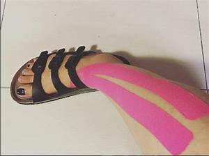 17 Best images about Kinesiology Tape: Foot on Pinterest ...