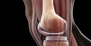 3 Things No One Ever Tells You About Getting A Knee Replacement