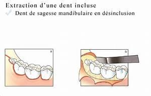 Symptome Dent De Sagesse : chirurgie buccale cabinet davarpanah paris 16 ~ Maxctalentgroup.com Avis de Voitures