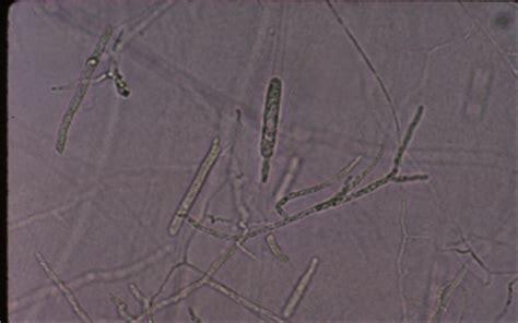 tilapia topic disease vector saprolegnia fungi