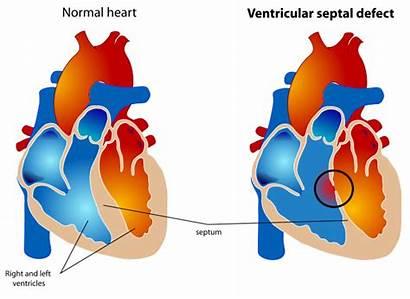 Ventricular Defect Septal Cardiac Output Decreased Care