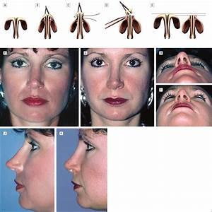 Nasal Tip Overprojection