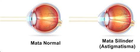 bahaya mata silinder astigmatisme obat batu empedu alami