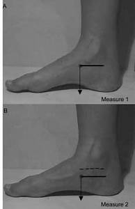 Navicular Drop Test Measurements  The Subject Stood With