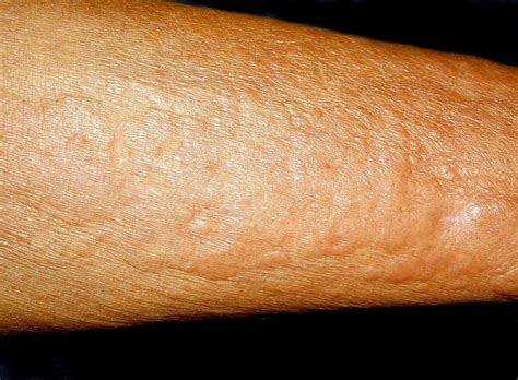 Skin Fungal Infection On Stomach Skin Image