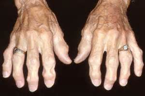 People with osteoarthritis may have: Osteoarthritis
