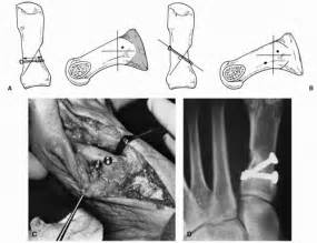 Proximal Procedures Of The First Ray