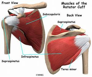 Calcific Tendonitis Of The Shoulder
