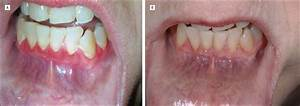 Successful Treatment Of Mucous Membrane Pemphigoid With