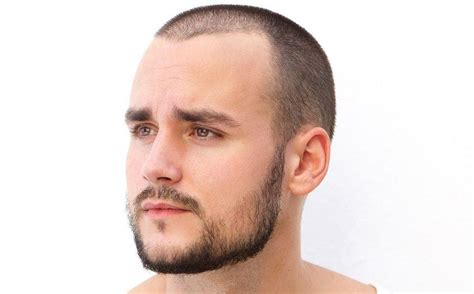 How To Effectively Fix A Patchy Beard (bald Spot