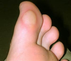 Blood Blisters Causes