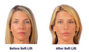 youthful image clinic edmonton soft lift