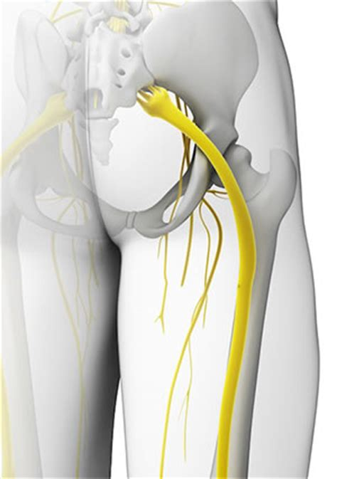 sciatica  sciatic pain   treated