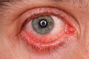 Itchy Scratchy Uncomfortable Symptoms Of Pink Eye