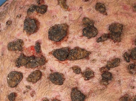 Ernstige acne