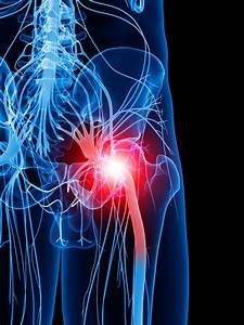 Exercises To Relieve Sciatic Pain