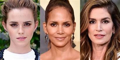 Botox Celebrities Surgery Celebrity Lift Eye Young