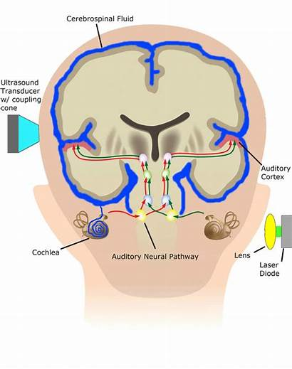 Hearing Auditory Technologies Types Devices Dl