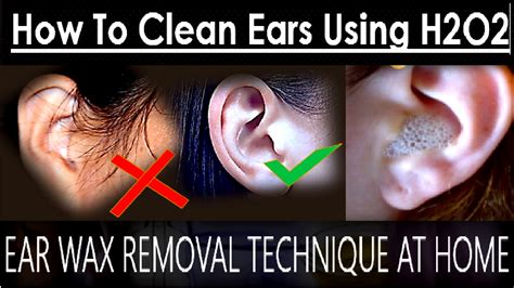 Ear Wax Removal Technique At Home  How To Clean Ears