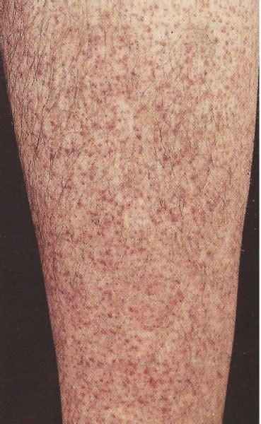 moretones en las piernas causas  sintomas