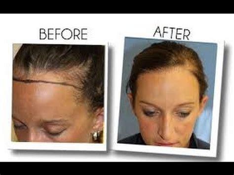 Womens Hair Loss Treatment - Minoxidil ( Arganrain