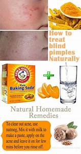 15 Natural Homemade Remedies To Treat Blind Pimples