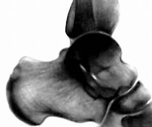 Болят суставы пальцев ног при ходьбе на каблуках