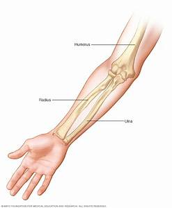 Broken Arm Disease Reference Guide