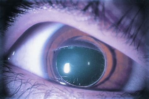 spherophakia american academy  ophthalmology
