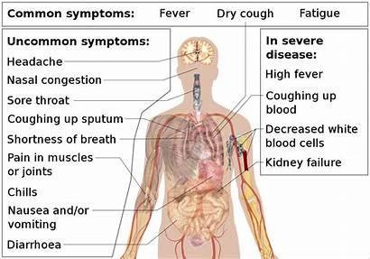 Symptoms Coronavirus Disease Wikipedia Svg Wiki